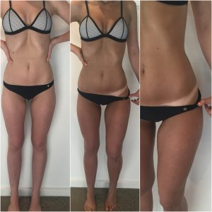 Top 5 Tanning Tips - Beauty Lounge St Kilda